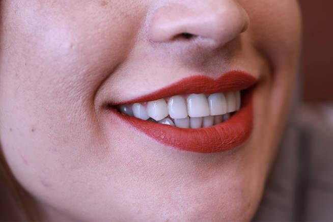 یکی از رموز بزرگ سلامت دندانها که شما نمیدانید